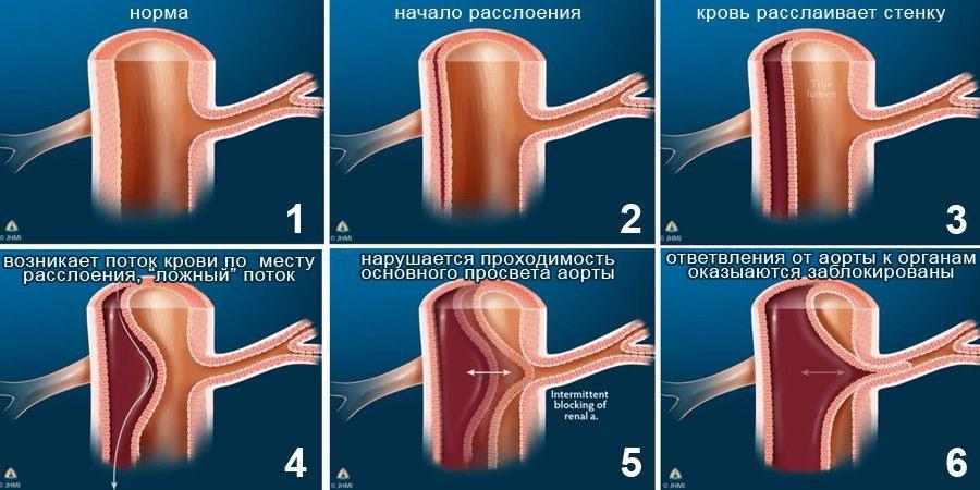 Степени расслаивания аневризмы аорты