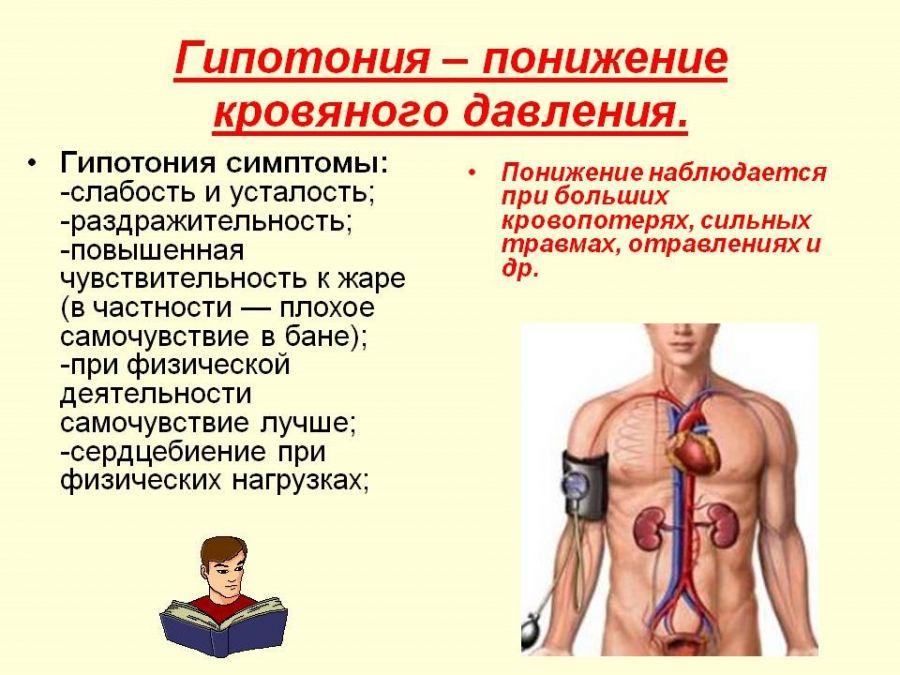 Гипотония