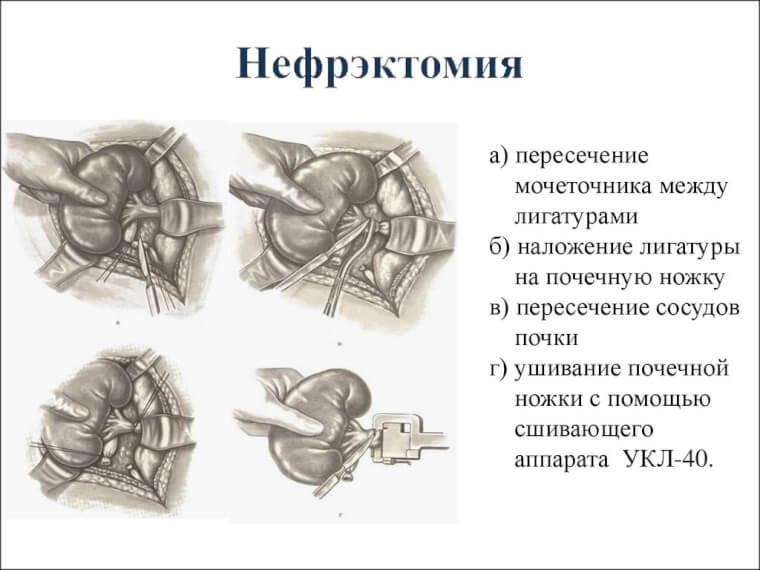 Нефрэктомия