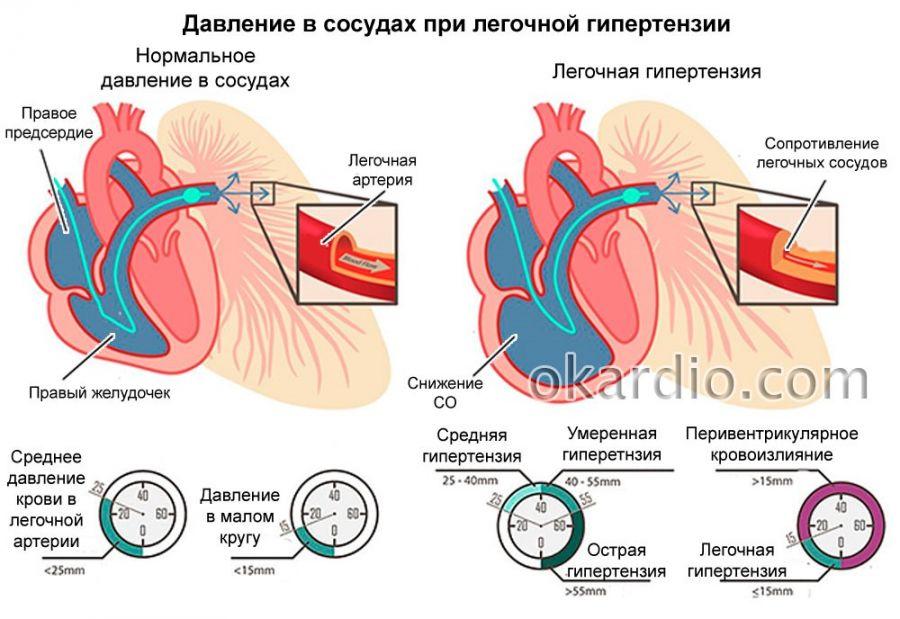 Давление в легочной артерии