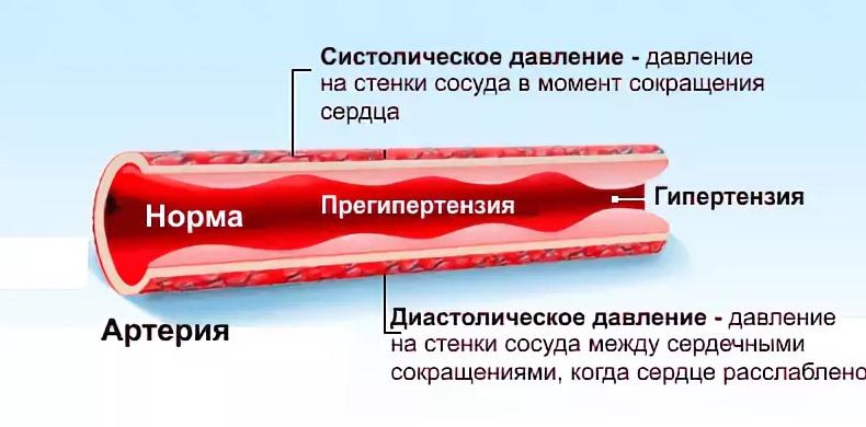 Сосуды при гипертензии
