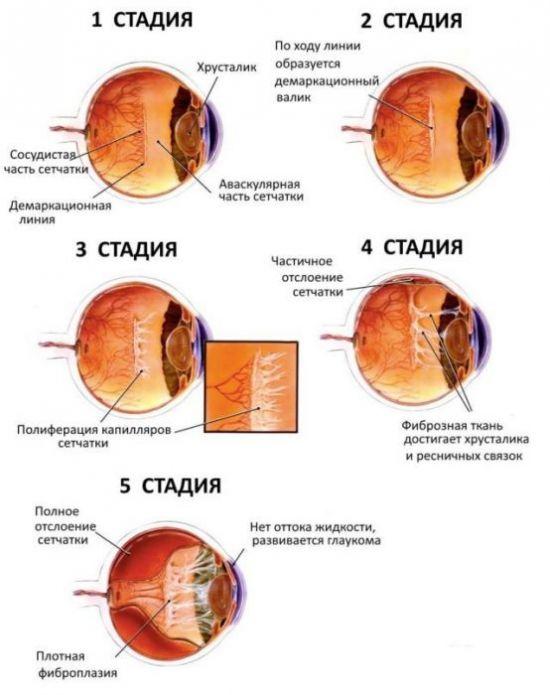 Стадии гипертонической ангиопатии сетчатки