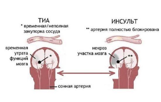 ТИА и инсульт