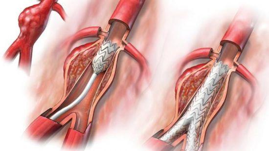 Метод аортального анастомоза почечных артерий